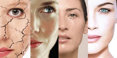 IRCC - Tipos de piel